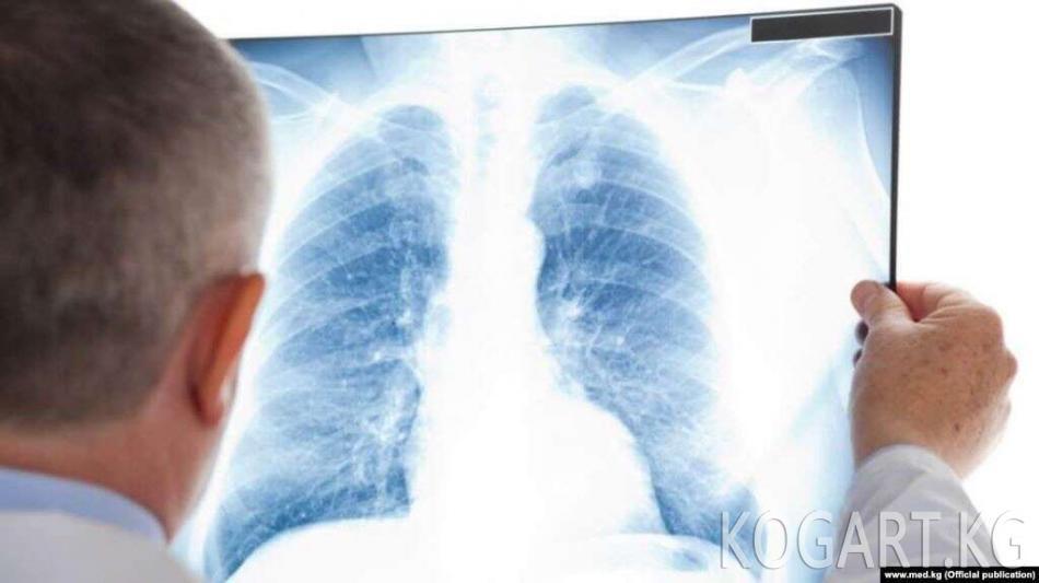 Сутка ичинде пневмониядан 40, коронавирустан алты адам кайтыш болду